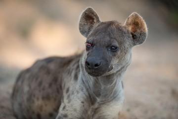 Garden Poster Hyena Closeup shot of a spotted hyena with a broken eye