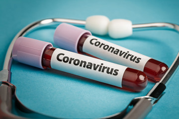 Blood samples in test tubes next to stethoscope. Epidemic Mers-CoV Coronavirus researching and treatment concept.