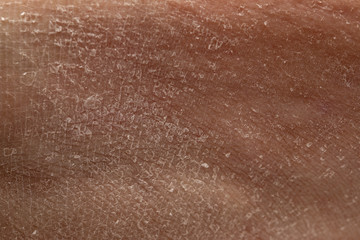 Pathological peeling of the skin due to keratosis. Details of the flaking human skin scales
