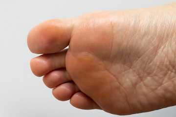 Wrinkles and calluses under the sole of a woman's foot