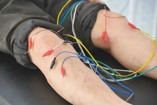 A man recieving electro acupuncture at knee and legs for relief pain ,Alternative medicine concept.