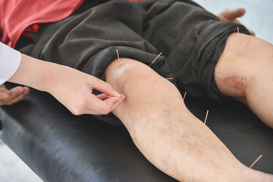 A man recieving acupuncture at knee and legs for relief pain ,Alternative medicine concept.