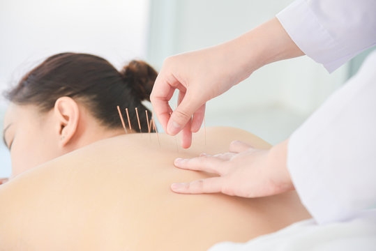 Hands of therapist doing acupuncture at patient back ,Alternative medicine concept.