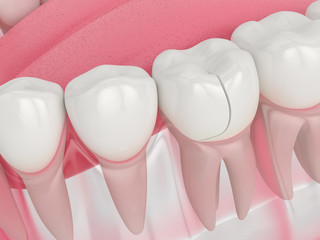 3d render of jaw with fractured tooth