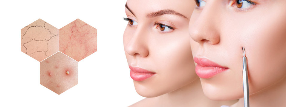Zoom hexagon shows skin problems with couperose and acne.