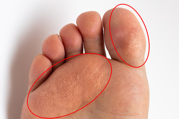 Sole of a woman's foot with thick corns highlighted by red circles