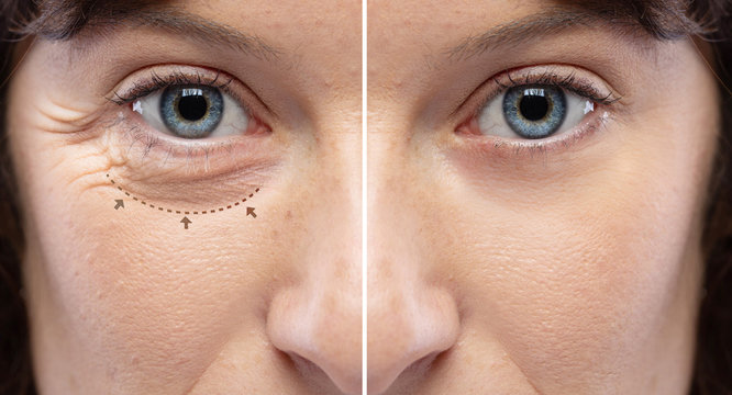 Before and after a rejuvination treatment, wrinkles and crow's feet removal Lines and arrows shows blepharoplasty zone