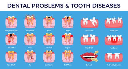 Dental Problems Diseases Infographic Set