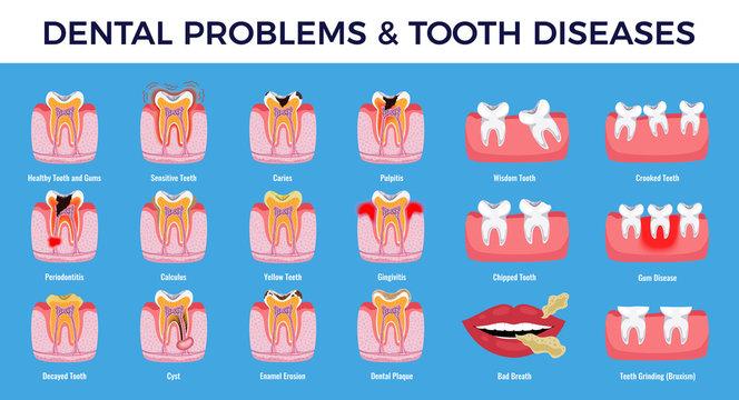 Dental Problems Diseases Infographic Set