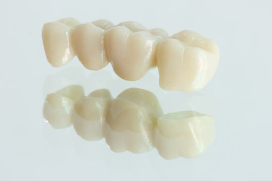 4 units​ zirconia​ bridge​ with​ all porcelain with a reflection on the glass.