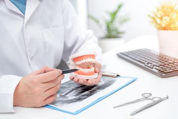 Doctor holding teeth model, medical consultation