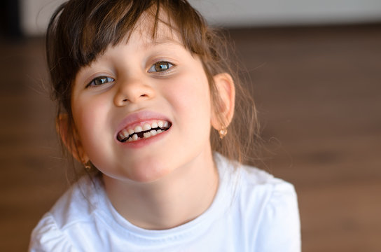Cute preschooler showing her milk tooth fell out and her growing permanent tooth in open mouth. Beautiful smiling preschool girl lost baby tooth. Dental hygiene concept