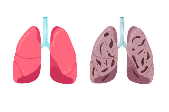Healthy and unhealthy lungs compare concept. Human respiratory system internal organ strong and pneumonia inflammation. Healthcare respiration medical anatomy vector illustration