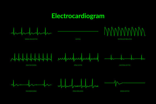 Electrocardiogram Heartbeat Line monitor. vector EPS10 Illustration