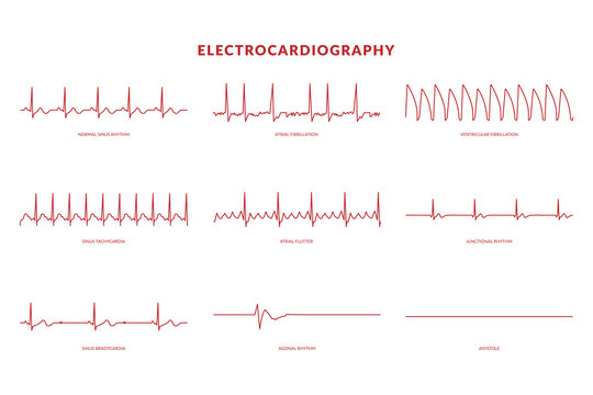 Electrocardiography Heartbeat Line monitor. vector EPS10 Illustration