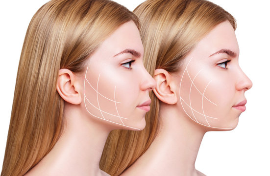 Young woman with lifting lines before and after chin correction.