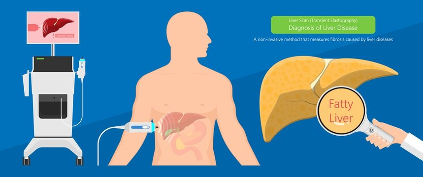 Liver scan biopsy diagnosis for cancer disease