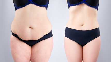 Woman's belly before and after weight loss on gray background Fotobehang