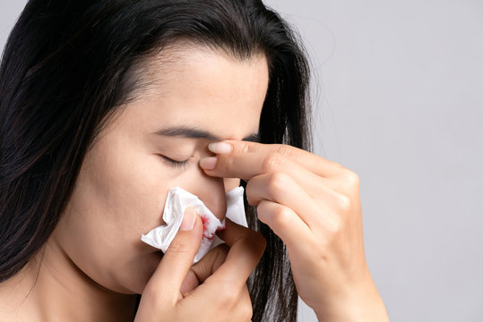 Nosebleed , a young woman suffering from nose bleeding and using tissue paper for stop bleeding. Healthcare and medical concept.