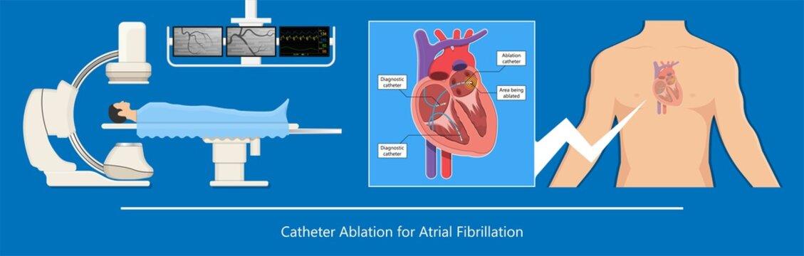 attack Cardiac catheter ablation Atrial fibrillation minimally invasive procedure rhythm problem cath lab treat treatment Coronary x-ray Radio frequency Sinus Ventricular SVT ECG ICD Radiofrequency AV