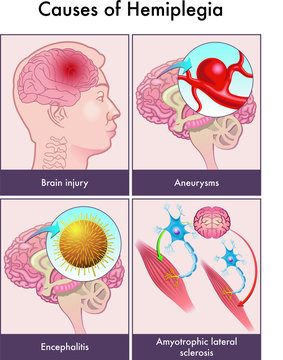 Medical illustration for causes of hemiplegia including brain injury, aneurysms, encephalitis and amyotrophic lateral sclerosis.