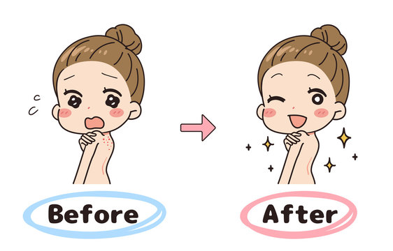 Set illustration of before and after back acne, upper body.