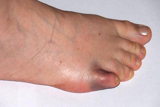 Fußzeh gebrochener kann man