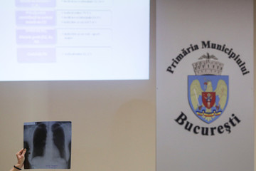A woman shows a pulmonary x-ray during a debate regarding air quality at Bucharest City Hall