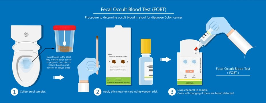 Fecal occult blood test FOBT lab stool sample bleeding screen risk examination collect container Guaiac diagnosis sign hemoccult smear FIT diagnostic