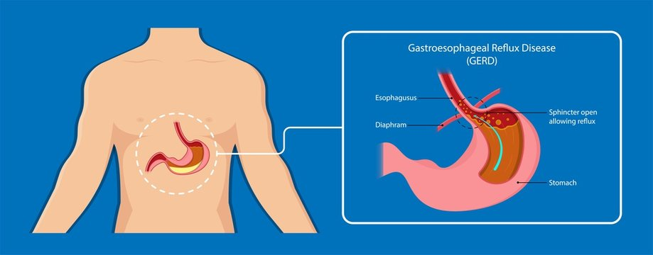 Gastroesophageal reflux disease (GERD) Hiatal Hernia treatment medication