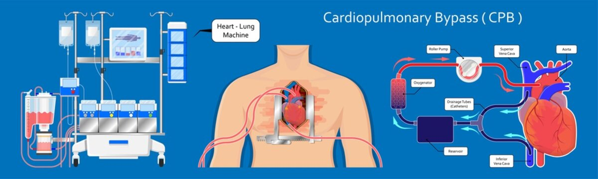 Cardiopulmonary bypass heart lung machine coronary oxygenator perfusiologist cardiologist operating life support artery graft circulation repair mitral tricuspid pulmonic septal defect aneurysms aid