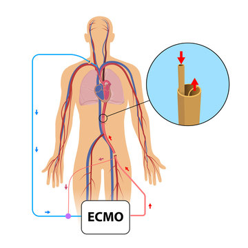 Extracorporeal membrane oxygenation,ecmo in intensive care depar