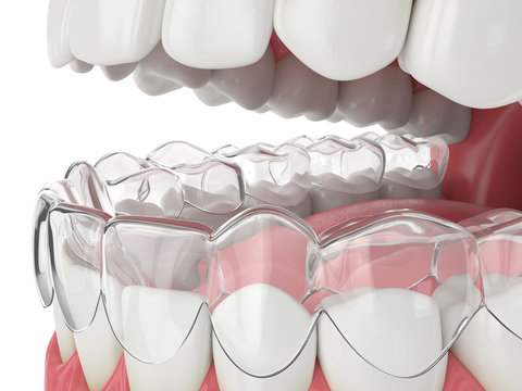 3d render of jaw with invisalign removable retainer