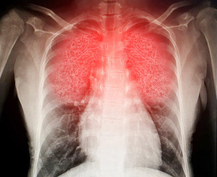Virus destroys human lungs the lnflamed a radiograph