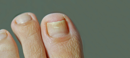 foot with nail psoriasis, onychomycosis. woman with an ingrown toenail. short cutted nails. Dermatitis Wall mural