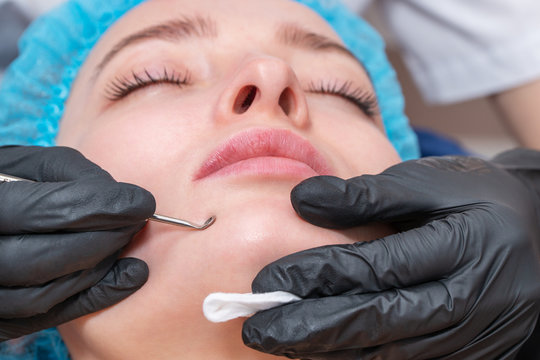 mechanical cleaning of the face with extractor