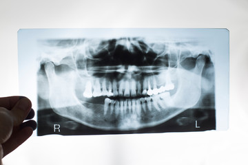 The dentist doctor holds in his hand an x-ray picture of the jaw with false teeth. Dental prosthetics concept with metal-ceramic crowns, periodontium