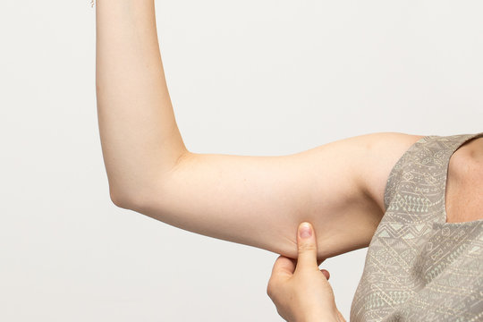 Woman pinching the flabby muscle and unwanted excess skin under her arm