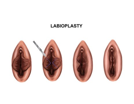 Illustration of the labioplasty. Before and after surgery