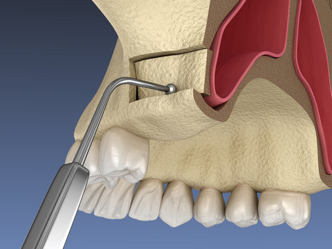 Sinus Lift Surgery - Creating side access to the Sinus. 3D illustration