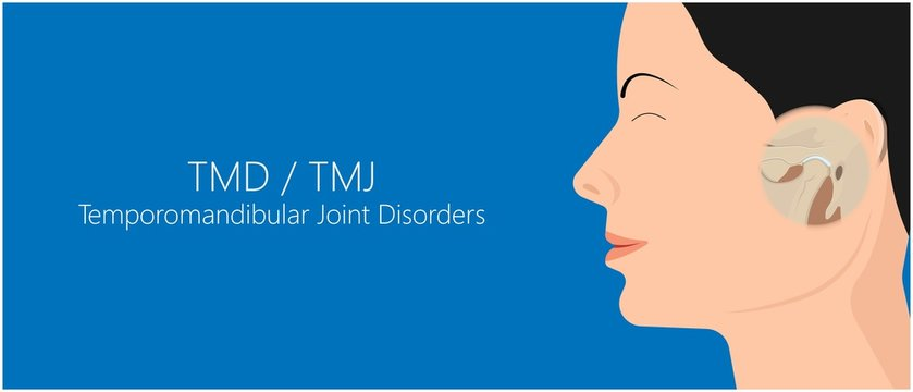 Temporomandibular Joint Disorders TMD TMJ treat pain displaced disc temporal bone locking bite plate plastic guard night Transcutaneous electrical nerve stimulation TENS Arthroscopy occlusal oral