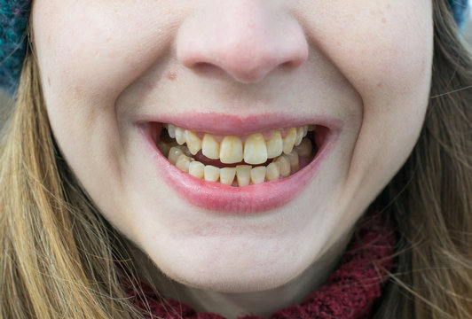 Yellow teeth of a girl, fluorosis. Smoker's problem teeth caused by fluoride, smoking, or coffee. Brown tooth enamel due to illness and drugs. Light skin and a wide smile. Natural photo