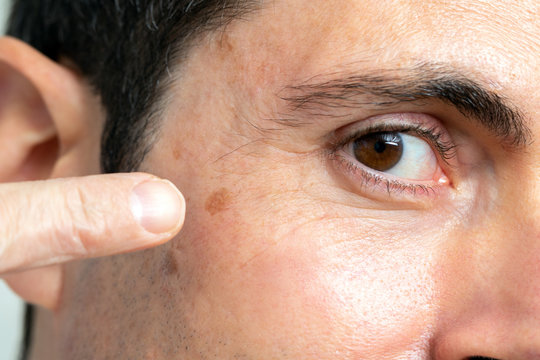 Detail of facial melanoma on middle aged man.