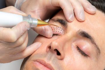 Middle aged man having laser plasma pen therapy on eyelids.