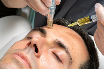 Middle aged man having micro needle cosmetic treatment.