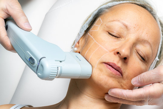 Top view of middle aged woman having skin tightening ultrasound treatment on chin.