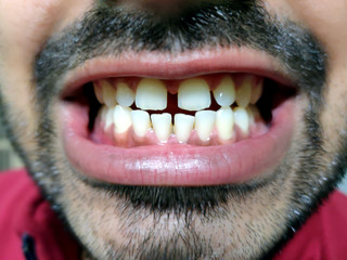 A man with a beard shows his teeth, he has a tooth gap.