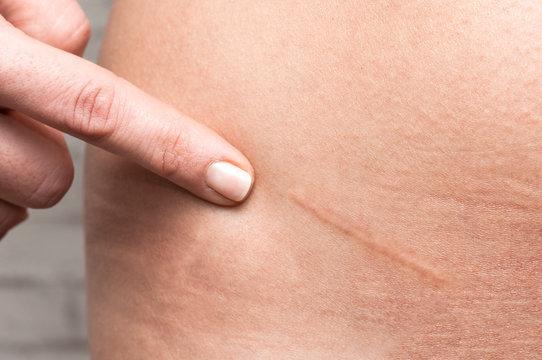 Appendicitis scar on woman's stomach