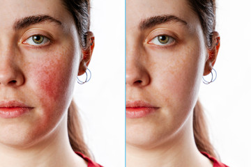 A close-up portrait of a young Caucasian woman showing redness and inflamed blood vessels on her cheeks. Isolate. Before and after. The concept of rosacea Wall mural