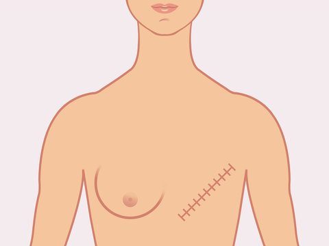 Female human form illustrated with the scars of a mastectomy